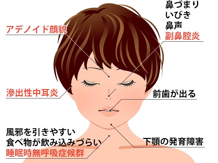 アデノイド増殖症の症状