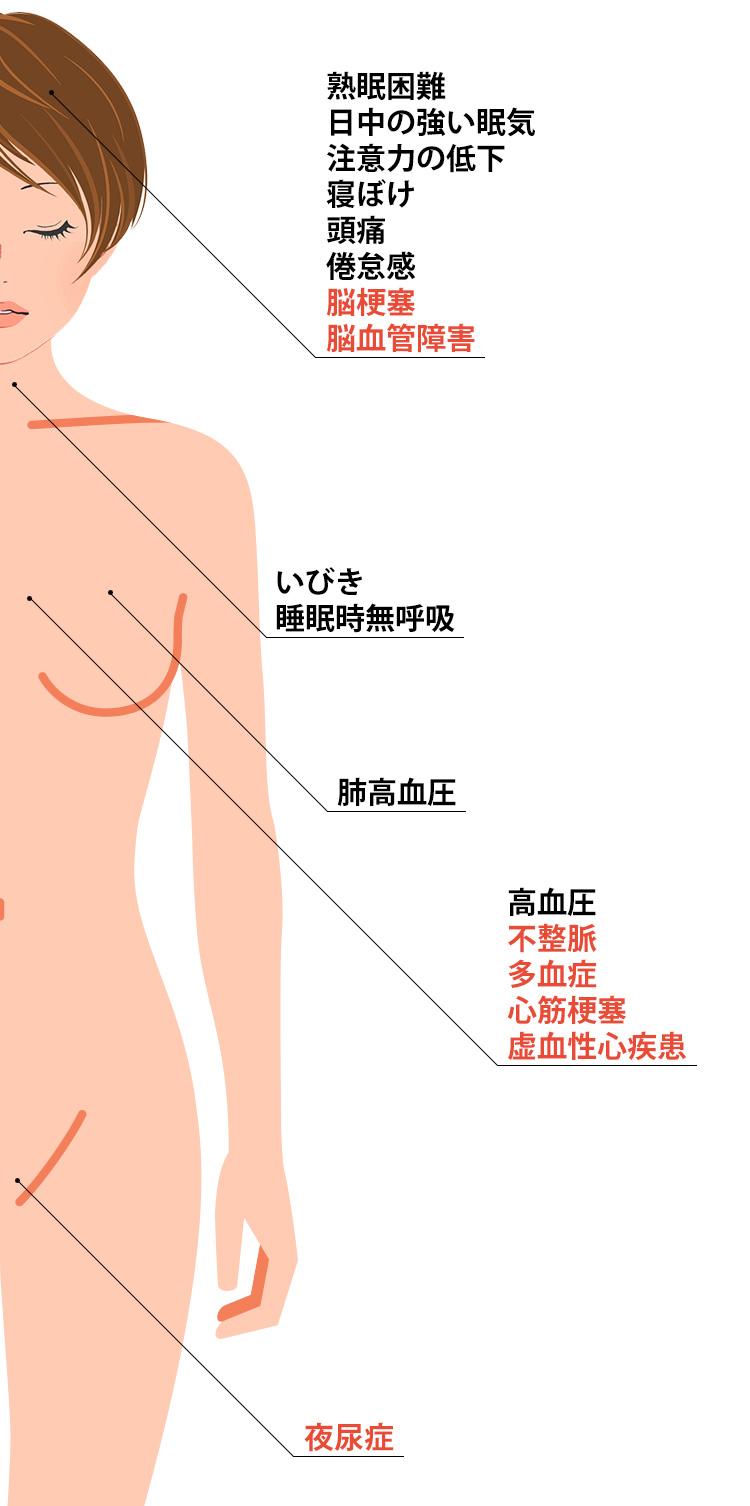 睡眠時無呼吸症候群の症状一覧