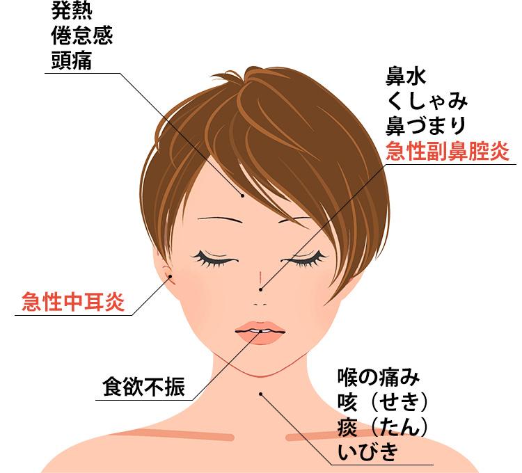 急性鼻炎の症状