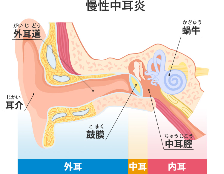 慢性中耳炎の構造