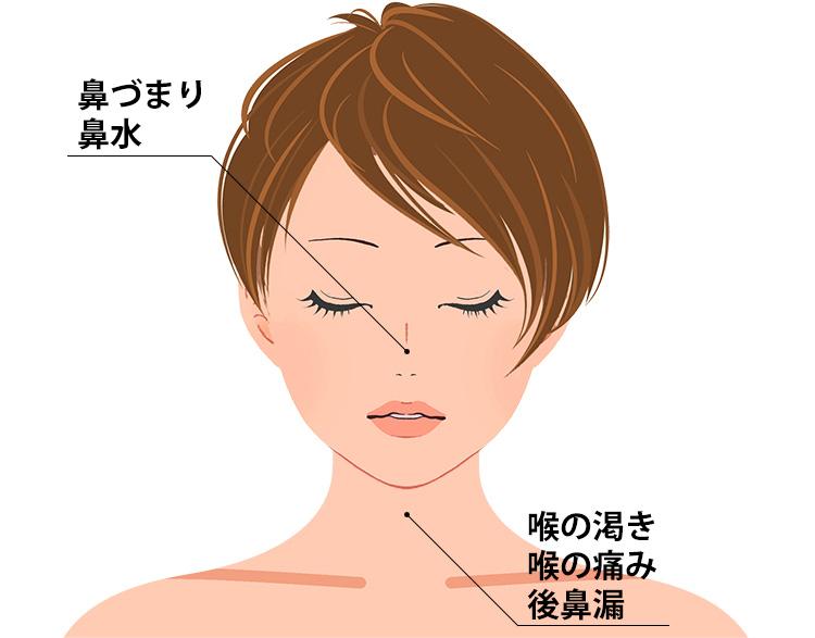 慢性鼻炎の症状一覧