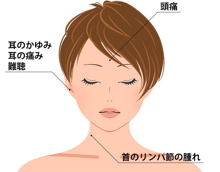 限局性外耳道炎の症状