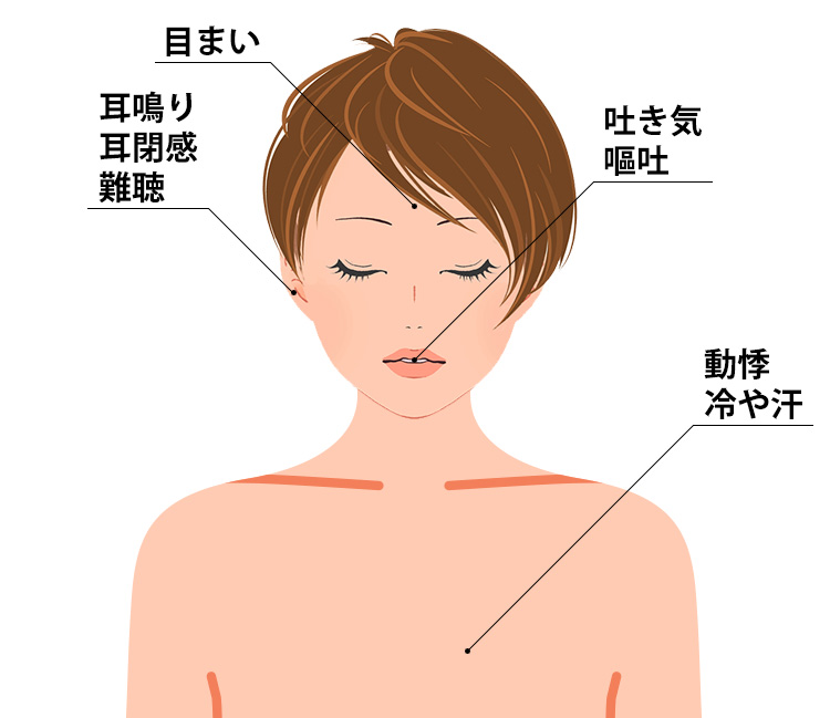 メニエール病の症状
