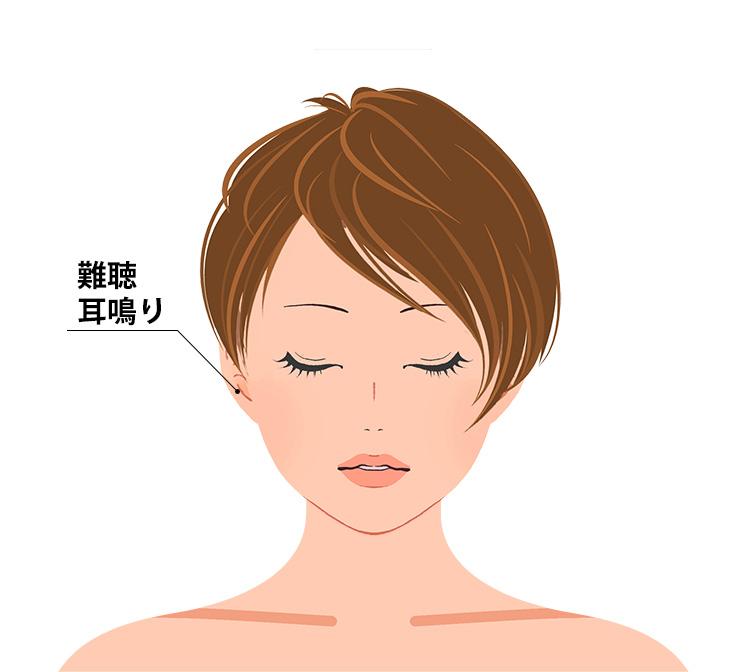 騒音性難聴の症状