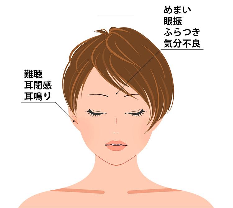 外リンパ瘻の症状