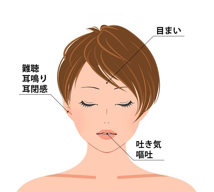 突発性難聴の症状
