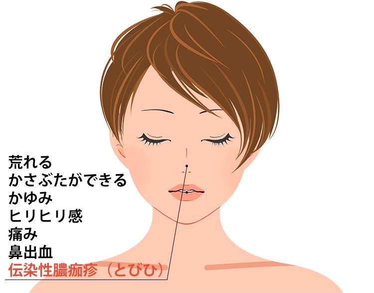 鼻前庭湿疹の症状