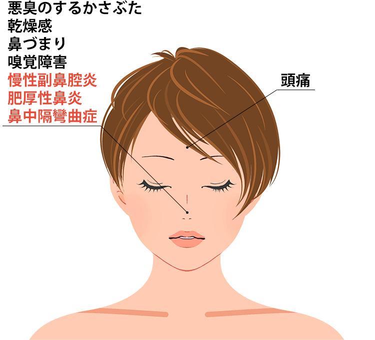 萎縮性鼻炎の症状一覧
