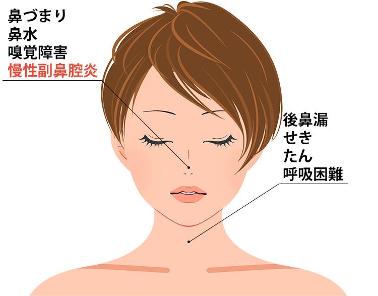 副鼻腔気管支症候群の症状
